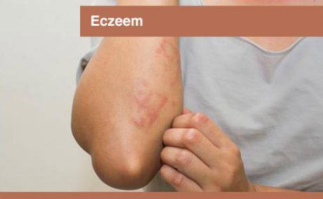 interplein-cursussen-eczeem